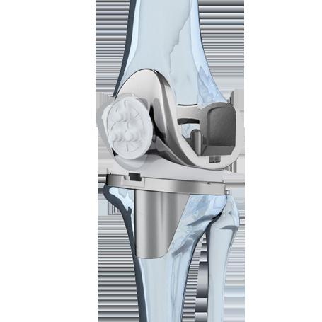 knee-1