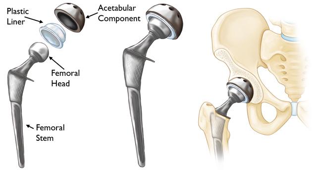 Операция по эндопротезированию тазобедренного сустава что происходит с суставами человека на высоте
