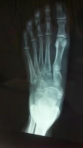 x-ray-223836_640
