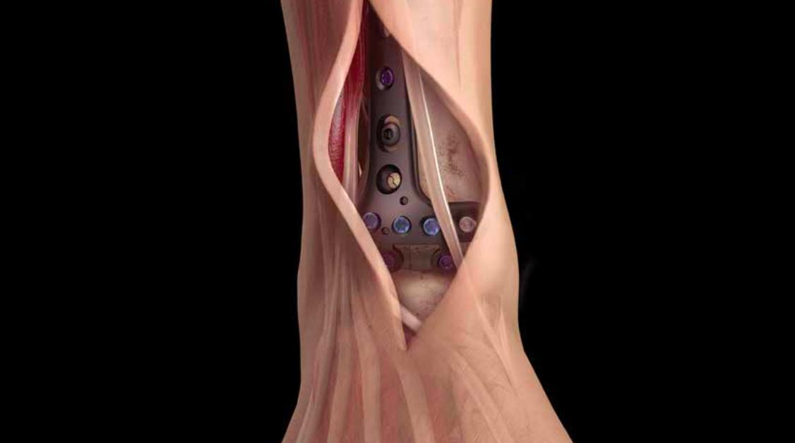 Пластины локтевого сустава лечение коленного сустава петербург