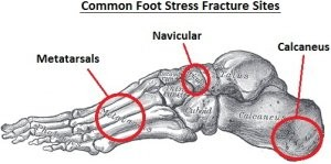foot-stress-fractures300opt.jpg.pagespeed.ce.yhfJ5WfVqD