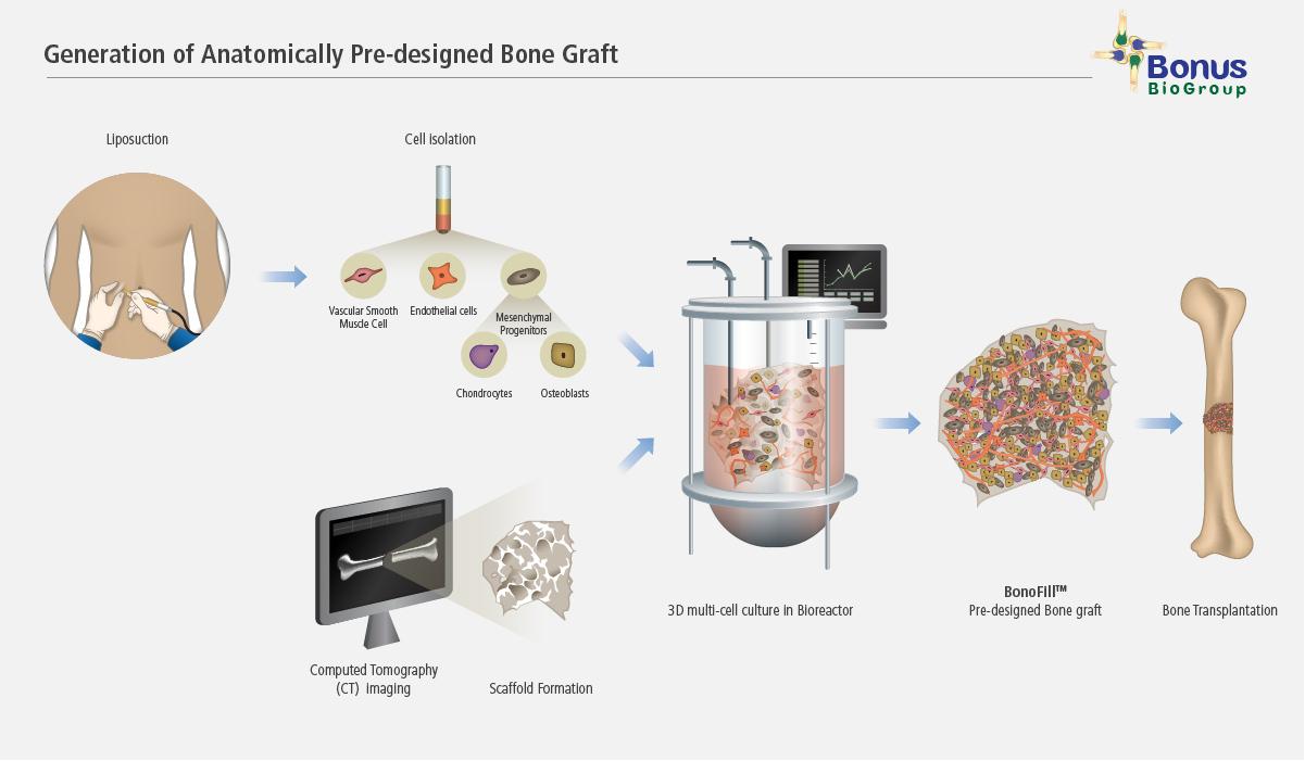 Pre-designed_Bone_Graft